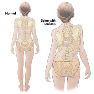 scoliosis-diagram
